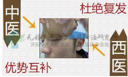 中西医结合,高效治疗白癜风